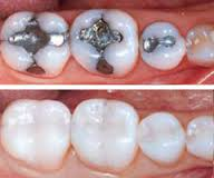 teeth restorations